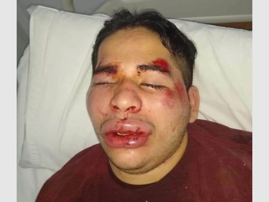 Un joven fue brutalmente golpeado y su familia denuncia que fue