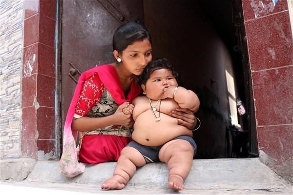Solo tiene ocho meses y ya pesa 17 kilos — India