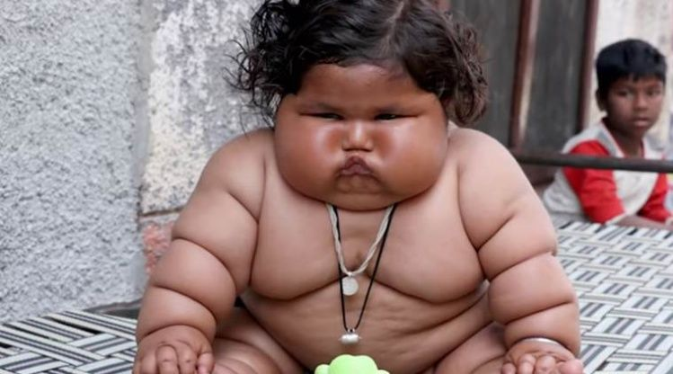 India: Solo tiene ocho meses y ya pesa 17 kilos