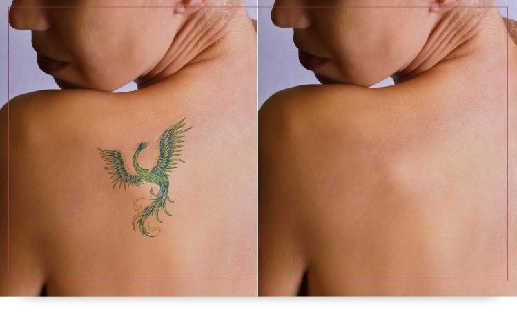 Ahora Se Puede Decir Chau A Los Tatuajes Diario De Cuyo