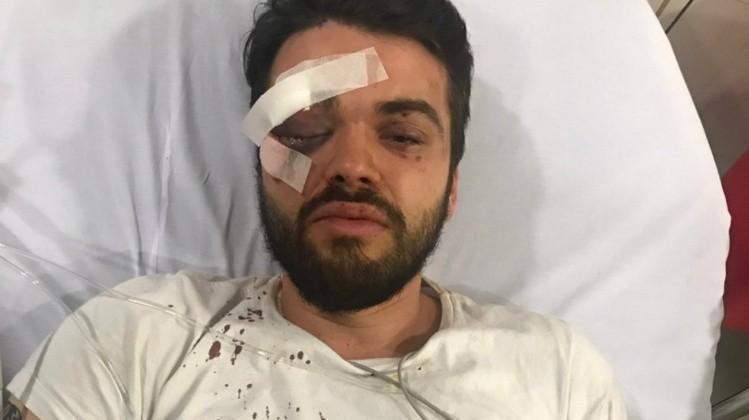 Un jugador de rugby argentino sufre una paliza por ser gay