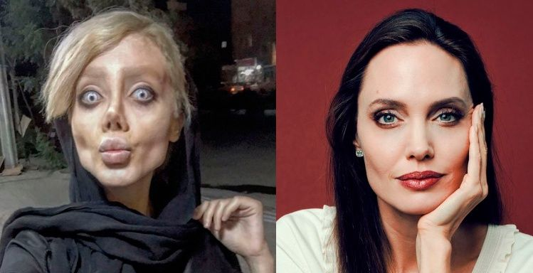 Así lucía la chica que se operó para parecerse a Angelina Jolie