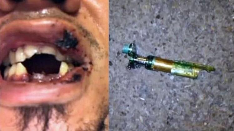 Le explota su cigarrillo electrónico en la boca y pierde 4 dientes