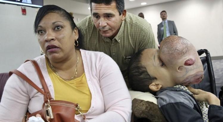 Médicos extirparán tumor de 4,5 kilos del rostro de un adolescente