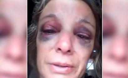 Le dieron un ladrillazo en la cara por negarse a tener sexo