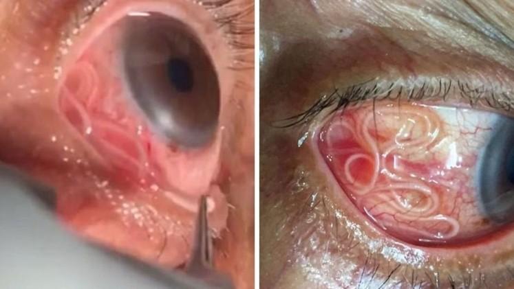 Doctor remueve un gusano de 15 cm del ojo de un hombre