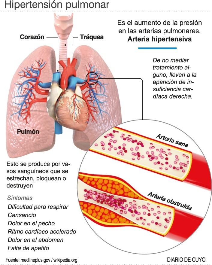 L hipertensión y el deporte wikipedia